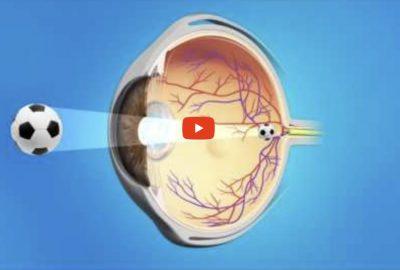 [香港眼科醫生] 白內障手術後YAG激光囊切開術